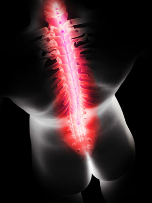 How Chiropractic Can Help Back Pain – Dr. Christopher Boni image